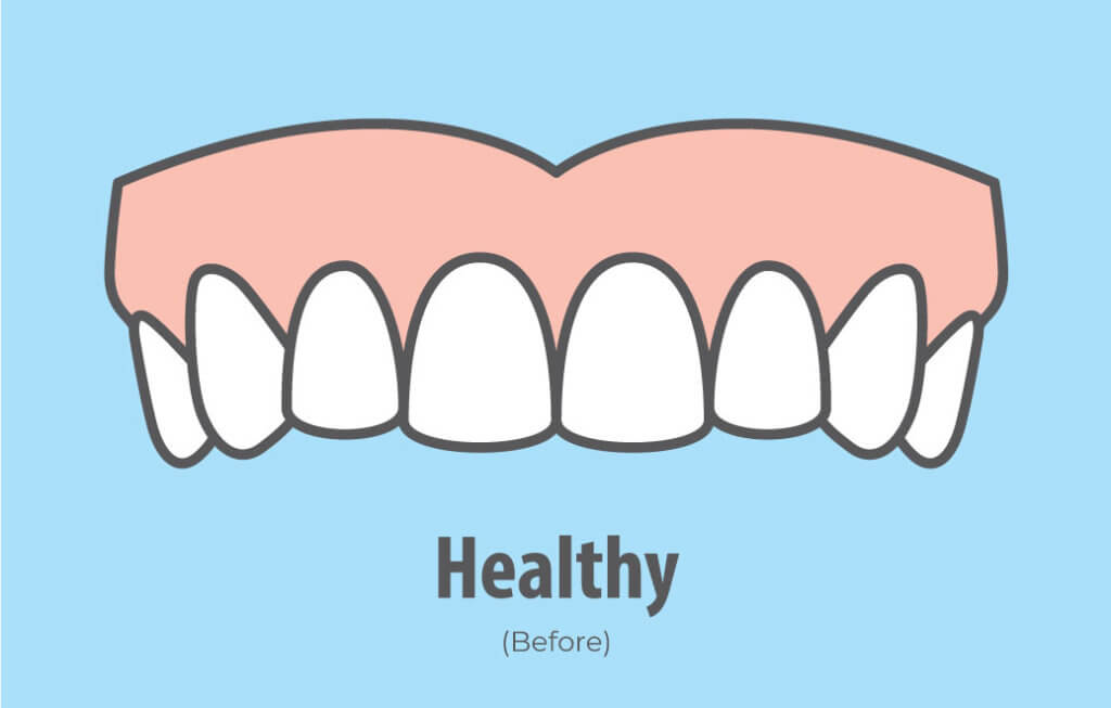 Bruxism - Before